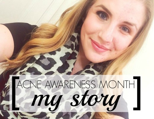 Acne Awareness Month my story about dealing with adult acne