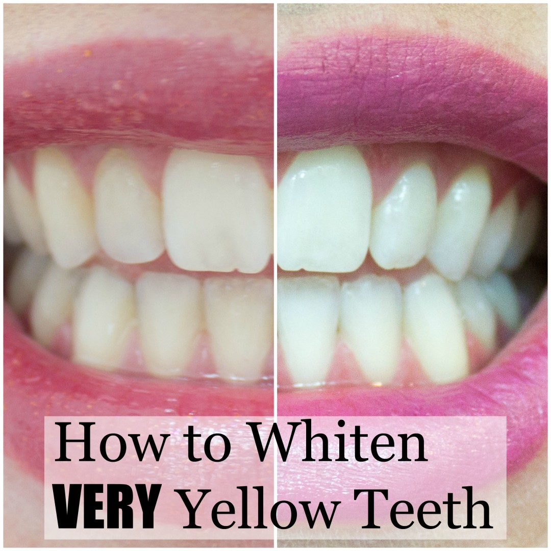 How to whiten very yellow teeth